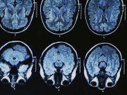 Штучна ДНК допомагає боротися з невиліковним захворюванням