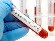Словаччина безкоштовно протестує все населення країни на коронавірус