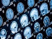 Нейромережа навчилася перетворювати думки на слова