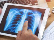 Штучний інтелект даватиме поради про здоровий спосіб життя через смартфон